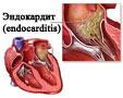 Сердечно-сосудистая система и ее заболевания  http://www.kurortkmv.com Эндокардит