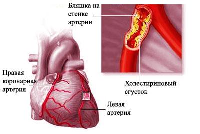 Норма анализов крови холестерин на английском